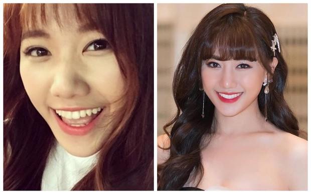 Đâu chỉ có ở Hàn, showbiz Việt cũng có cả loạt sao lột xác, khoe nụ cười đắt giá nhờ thẩm mỹ răng - Ảnh 4.