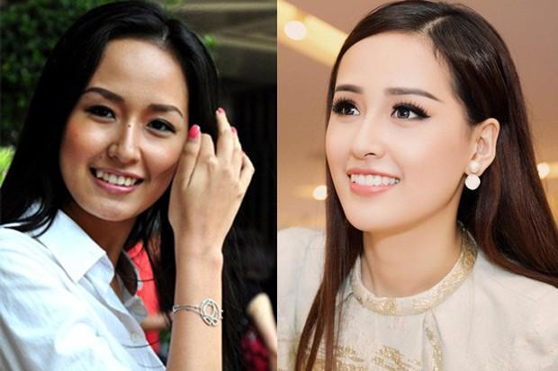 Đâu chỉ có ở Hàn, showbiz Việt cũng có cả loạt sao lột xác, khoe nụ cười đắt giá nhờ thẩm mỹ răng - Ảnh 11.