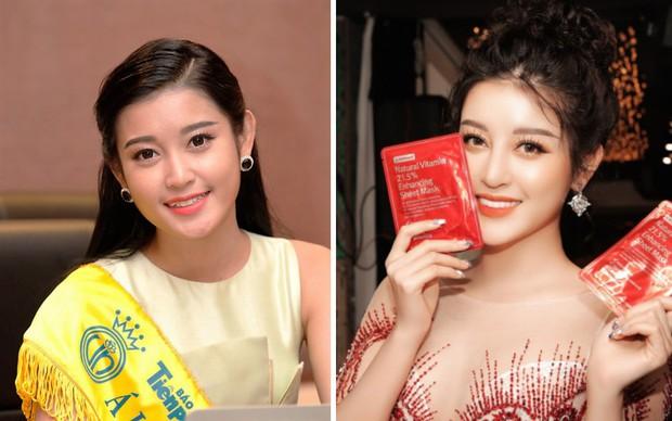 Đâu chỉ có ở Hàn, showbiz Việt cũng có cả loạt sao lột xác, khoe nụ cười đắt giá nhờ thẩm mỹ răng - Ảnh 9.