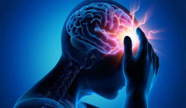 Cấp cứu thành công ca bệnh đột quỵ não vì tin lời tập luyện giáo phái lạ, bỏ thuốc điều trị - Ảnh 3.