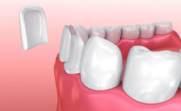 Làm đủ mọi cách mà răng vẫn xấu, cô gái người Mỹ chỉ có được nụ cười sáng nhanh chóng sau khi dán sứ veneer - Ảnh 3.