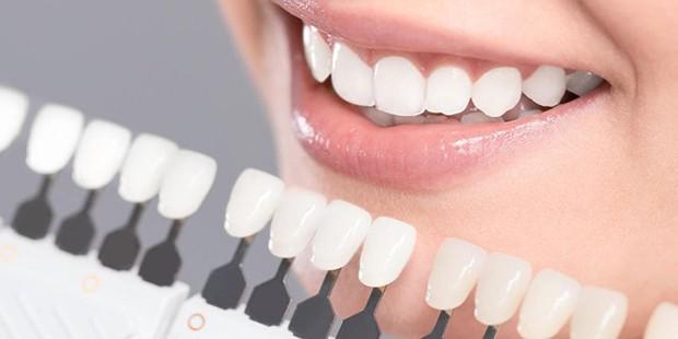 Làm đủ mọi cách mà răng vẫn xấu, cô gái người Mỹ chỉ có được nụ cười sáng nhanh chóng sau khi dán sứ veneer - Ảnh 4.
