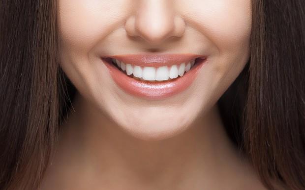 Làm đủ mọi cách mà răng vẫn xấu, cô gái người Mỹ chỉ có được nụ cười sáng nhanh chóng sau khi dán sứ veneer - Ảnh 5.