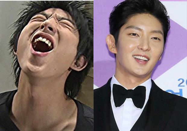 Bọc răng sứ giống sao Hàn: Đẹp thì đẹp thật nhưng bạn chắc chắn phải tuân thủ các nguyên tắc này - Ảnh 2.