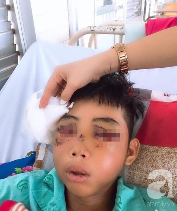 Đi phụ hồ giúp gia đình, bé trai 15 tuổi bị cây đâm xuyên mặt, phải bỏ một bên mắt - Ảnh 1.