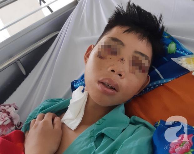 Đi phụ hồ giúp gia đình, bé trai 15 tuổi bị cây đâm xuyên mặt, phải bỏ một bên mắt - Ảnh 3.