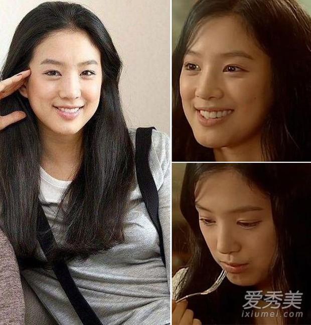 Những lần sao Hàn khiến fan phát hoảng vì nhan sắc tuột dốc không phanh: Người tăng cân quá đà, kẻ lạm dụng dao kéo - Ảnh 18.