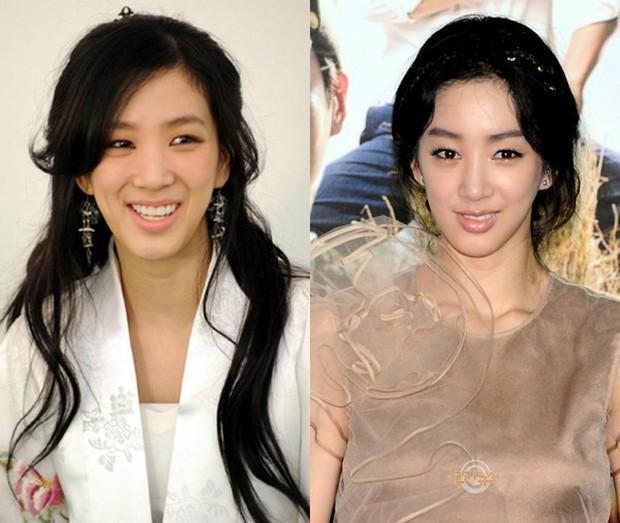 Những lần sao Hàn khiến fan phát hoảng vì nhan sắc tuột dốc không phanh: Người tăng cân quá đà, kẻ lạm dụng dao kéo - Ảnh 20.