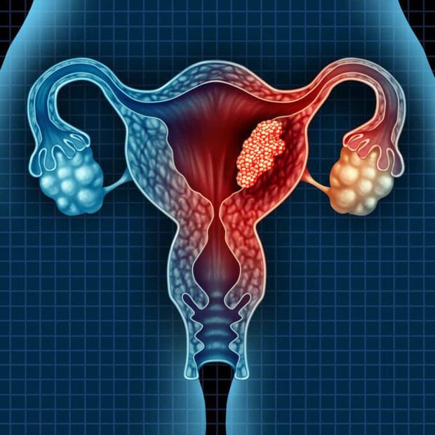 Sở hữu khối u lạ ở vùng bụng, cô gái trẻ đi khám được bác sĩ chẩn đoán khó sinh con sau này - Ảnh 3.