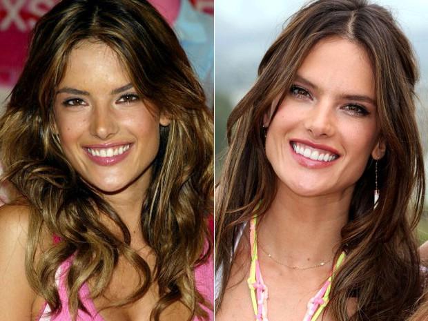 Những màn vịt hóa thiên nga của sao Hollywood sau khi sứ hóa hàm răng - Ảnh 6.