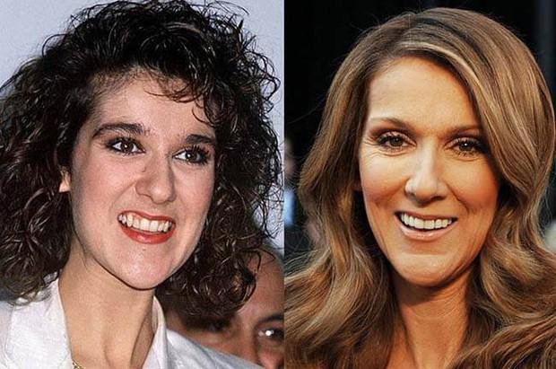 Những màn vịt hóa thiên nga của sao Hollywood sau khi sứ hóa hàm răng - Ảnh 7.