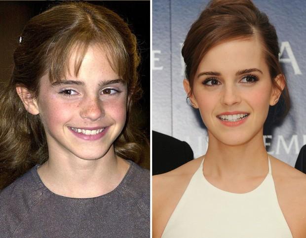 Những màn vịt hóa thiên nga của sao Hollywood sau khi sứ hóa hàm răng - Ảnh 8.