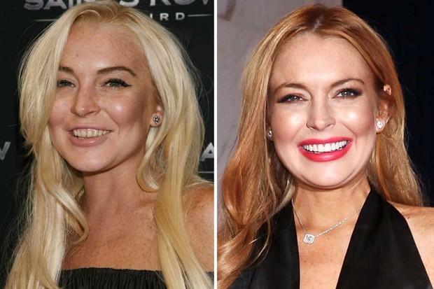 Những màn vịt hóa thiên nga của sao Hollywood sau khi sứ hóa hàm răng - Ảnh 12.