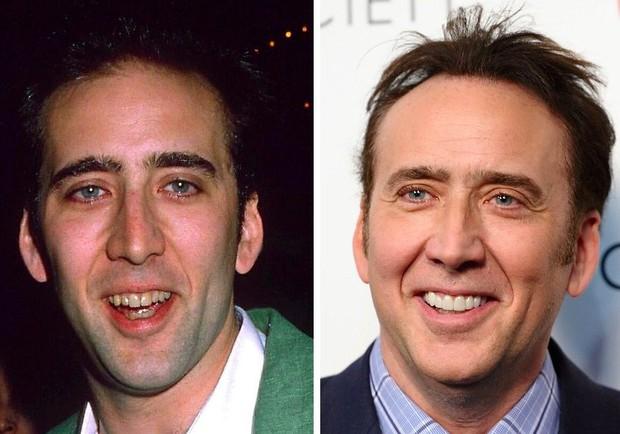 Những màn vịt hóa thiên nga của sao Hollywood sau khi sứ hóa hàm răng - Ảnh 11.