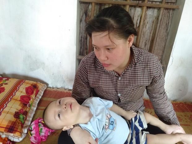 Con trai lớn 5 tuổi mắc bệnh tim, đứa bé 1 tuổi liệt tứ chi, người mẹ nuốt nước mắt cầu xin một cơ hội để cứu con - Ảnh 5.