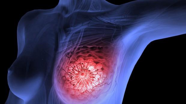 Loại rau chống được 8 bệnh ung thư bao gồm ung thư vú và dạ dày, chợ Việt Nam vừa sẵn lại rẻ bèo - Ảnh 2.