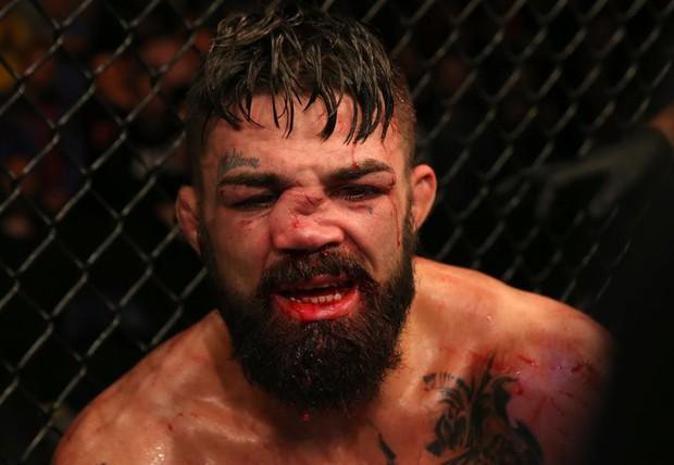 Mũi của võ sĩ điển trai biến dạng đến không thể tin nổi sau khi phải nhận một trong những chấn thương kinh hoàng nhất lịch sử - Ảnh 2.
