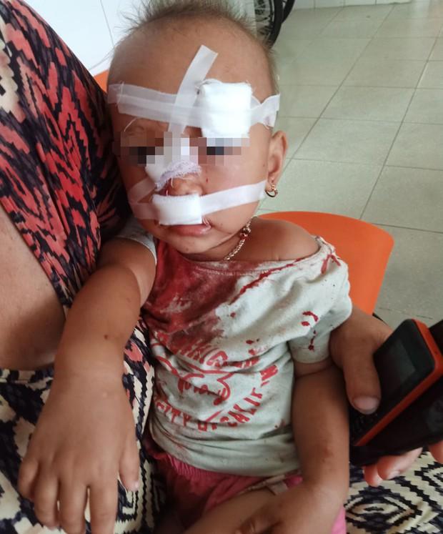 Mẹ bé gái bị cha ruột ném ly vào mặt, khâu 12 mũi: Lúc 13 tháng, con bé cũng bị ném vật cứng làm chấn thương sọ não - Ảnh 2.