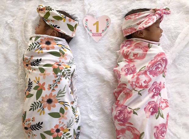 Cặp song sinh vừa chào đời đã nắm chặt tay nhau khiến cư dân mạng vừa thích thú vừa cảm động - Ảnh 3.