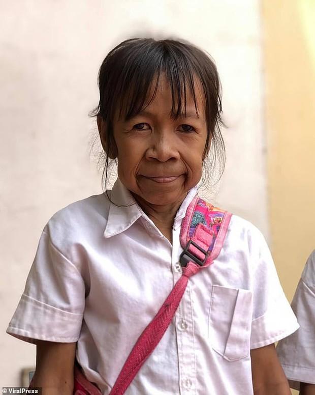 """Bé gái 10 tuổi mặt nhăn nheo như cụ bà 60: """"Cháu muốn phẫu thuật và trở nên xinh đẹp, ai cũng gọi cháu là bà già"""" - Ảnh 1."""