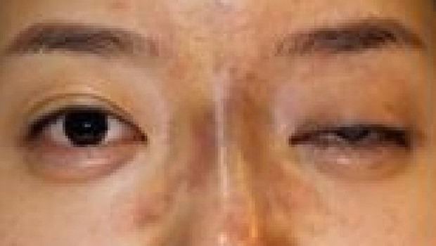 Kylie Jenner tiêm thẩm mỹ môi nhìn cực quyến rũ nhưng Hiệp hội bác sĩ thẩm mỹ Úc lại cảnh báo có nguy cơ gây mù lòa - Ảnh 4.