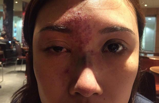 Kylie Jenner tiêm thẩm mỹ môi nhìn cực quyến rũ nhưng Hiệp hội bác sĩ thẩm mỹ Úc lại cảnh báo có nguy cơ gây mù lòa - Ảnh 5.