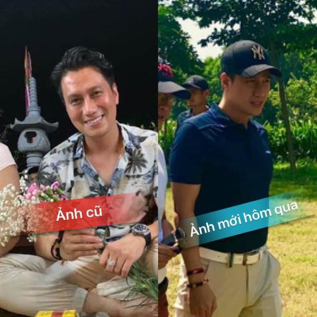 Việt Anh tiếp tục bị phản ứng trước gương mặt sau phẫu thuật thẩm mỹ, Quế Vân gay gắt đăng đàn thanh minh hộ bạn thân - Ảnh 2.