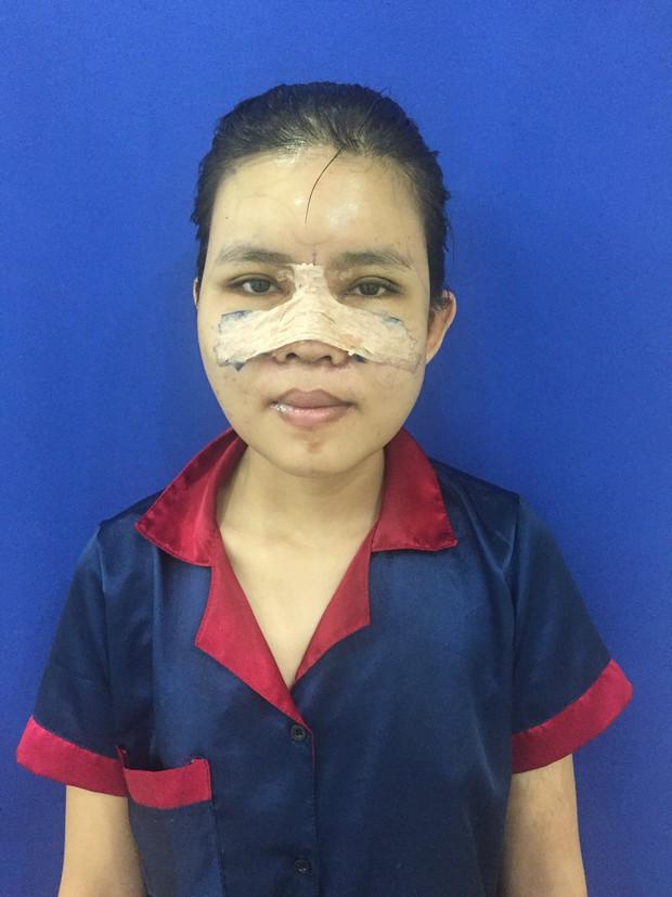 Màn lột xác ngoạn mục của cô gái từng bị trêu là mặt lưỡi cày: Bố bật khóc khi gặp lại con sau những cuộc đại phẫu - Ảnh 3.