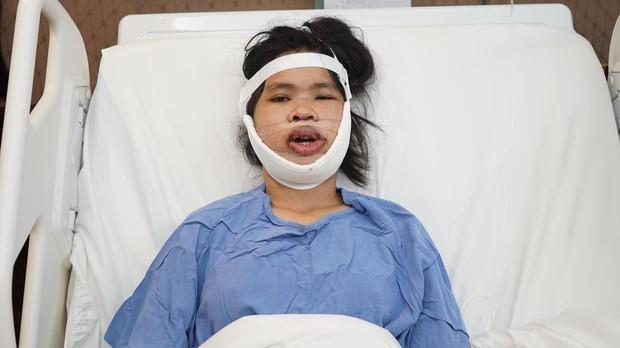Màn lột xác ngoạn mục của cô gái từng bị trêu là mặt lưỡi cày: Bố bật khóc khi gặp lại con sau những cuộc đại phẫu - Ảnh 2.