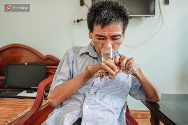 Số phận cay đắng của người cây kì lạ nhất Việt Nam: Mẹ cõng con đi điều trị gần 50 năm, phải uống thuốc ngủ để quên cơn đau - Ảnh 5.