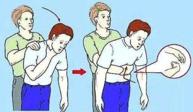 Thêm một trường hợp trẻ tử vong khi đang ăn, bạn đã nắm rõ cách sơ cứu trẻ bị hóc dị vật chưa? - Ảnh 3.