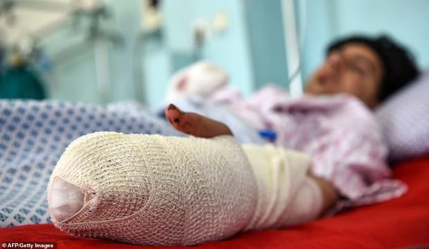 Ám ảnh hiện trường vụ đánh bom đám cưới ở Afghanistan, 63 người chết - Ảnh 7.