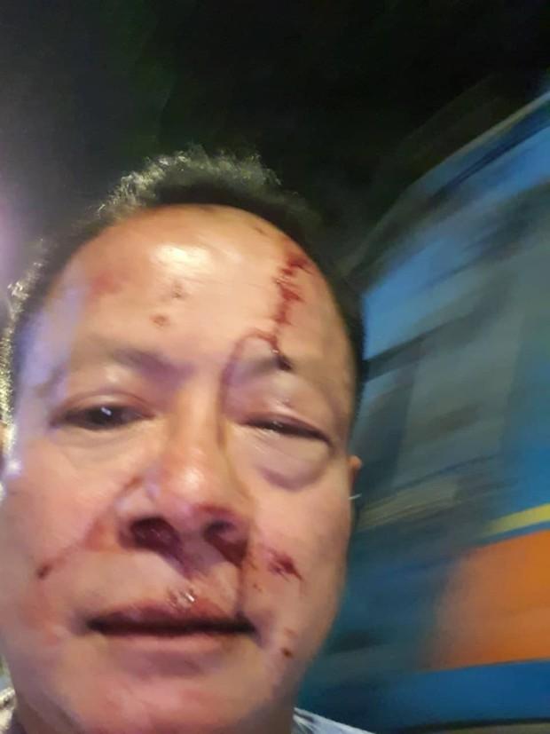 Nhóm thanh niên đánh Việt Kiều Đức trọng thương trong quán karaoke ở Sài Gòn - Ảnh 1.