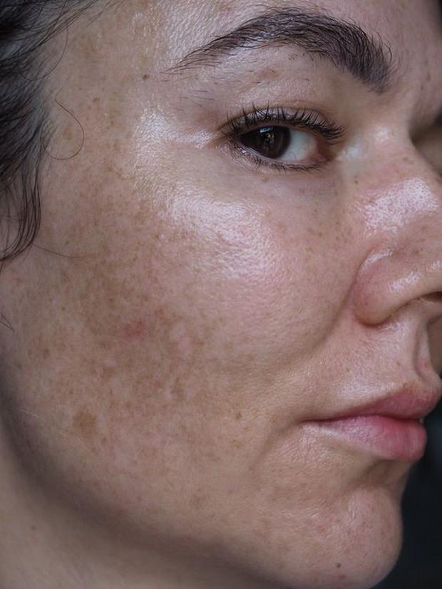 Cải thiện bề mặt da và làm mờ nám, đây chính là thành phần chống lão hóa chân ái cho các nàng tuổi 30 - Ảnh 1.
