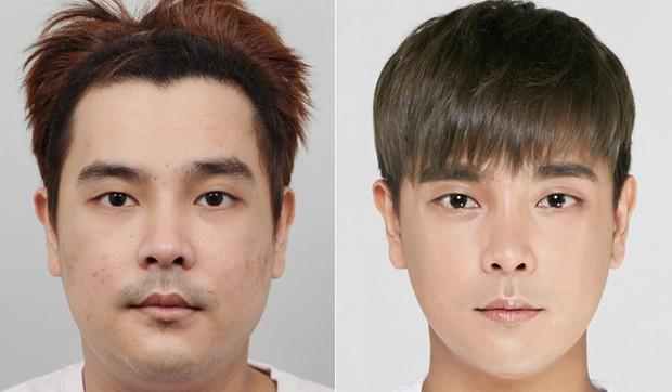 Không muốn 'ế kinh niên, nghèo suốt kiếp', đàn ông Trung Quốc chi mạnh cho phẫu thuật thẩm mỹ để mong đổi đời - Ảnh 4.