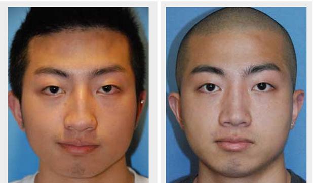 Không muốn 'ế kinh niên, nghèo suốt kiếp', đàn ông Trung Quốc chi mạnh cho phẫu thuật thẩm mỹ để mong đổi đời - Ảnh 3.