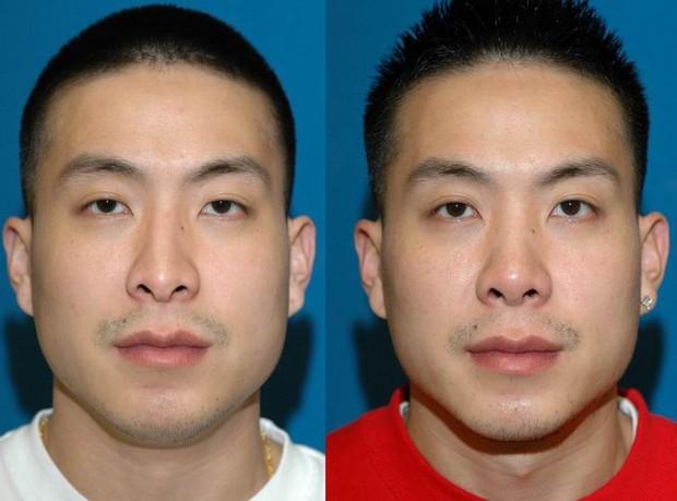 Không muốn 'ế kinh niên, nghèo suốt kiếp', đàn ông Trung Quốc chi mạnh cho phẫu thuật thẩm mỹ để mong đổi đời - Ảnh 5.