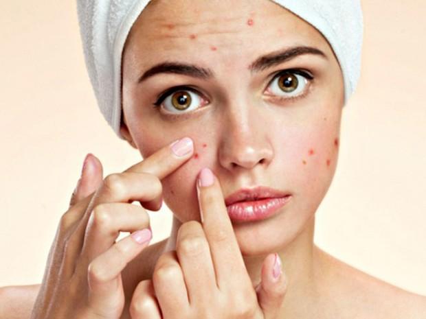Làn da khỏe và sạch mụn dễ như ăn kẹo nhờ 5 tips cơ bản mà ai cũng có thể làm theo - Ảnh 2.