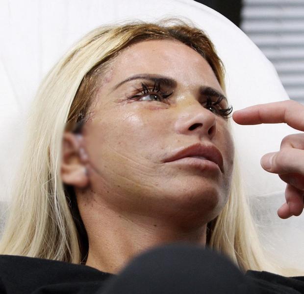 Thảm họa dao kéo hot nhất nước Anh Katie Price: Từng đẹp đến mức Ronaldo mê đắm, bỏ rơi mẹ già ung thư vì nghiện thẩm mỹ - Ảnh 11.