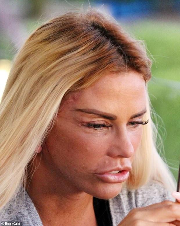Thảm họa dao kéo hot nhất nước Anh Katie Price: Từng đẹp đến mức Ronaldo mê đắm, bỏ rơi mẹ già ung thư vì nghiện thẩm mỹ - Ảnh 10.
