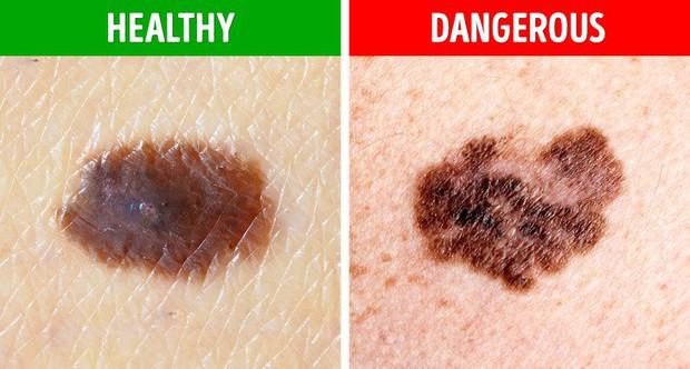 Bạn sẽ không nghĩ rằng mình có nguy cơ mắc bệnh ung thư da sau khi nhìn thấy nốt ruồi có 5 biểu hiện lạ này - Ảnh 2.
