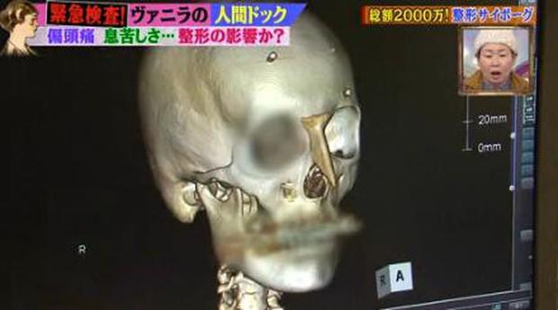 Thảm hoạ thẩm mỹ Nhật Bản: Bị bố ruột ruồng bỏ vì quá xấu, hàng trăm ca dao kéo bất chấp sinh mạng và tâm sự buồn phía sau - Ảnh 13.