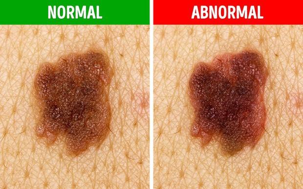 Bạn sẽ không nghĩ rằng mình có nguy cơ mắc bệnh ung thư da sau khi nhìn thấy nốt ruồi có 5 biểu hiện lạ này - Ảnh 3.