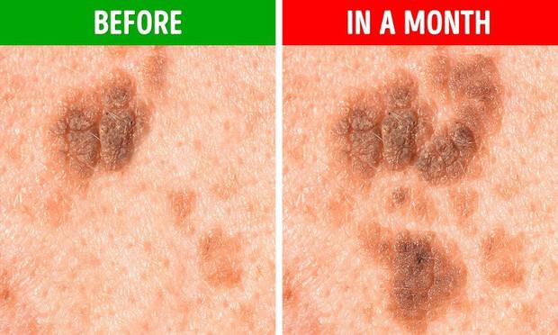 Bạn sẽ không nghĩ rằng mình có nguy cơ mắc bệnh ung thư da sau khi nhìn thấy nốt ruồi có 5 biểu hiện lạ này - Ảnh 5.