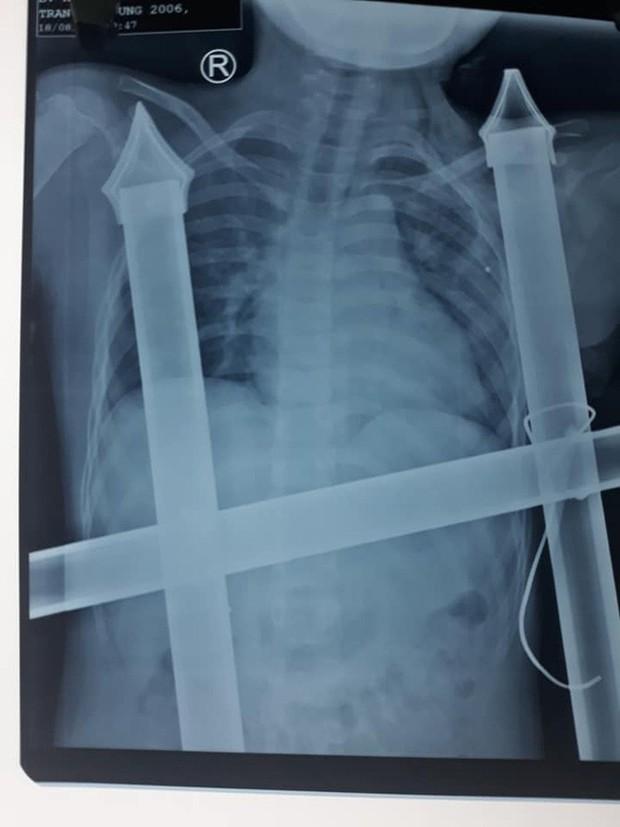 Trèo cây ngã xuống, cậu bé 13 tuổi bị chông hàng rào đâm xuyên ngực - Ảnh 2.