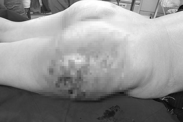 Người phụ nữ bị thối 2 bên mông, phải nạo vét sau làm đẹp - Ảnh 1.