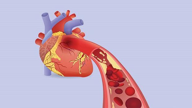 Thói quen uống nước nhiều người hay mắc phải trong mùa hè khiến chàng trai 28 tuổi bị nhồi máu cơ tim cấp tính - Ảnh 3.