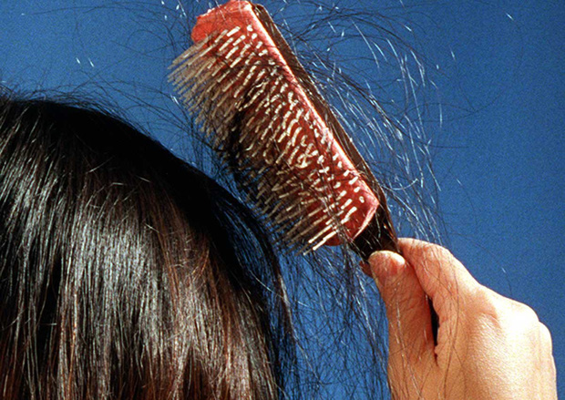 Bé gái 13 tuổi bị hói đầu, rụng sạch lông mi, lông mày, biết nguyên nhân bố mẹ nào cũng giật mình - Ảnh 1.