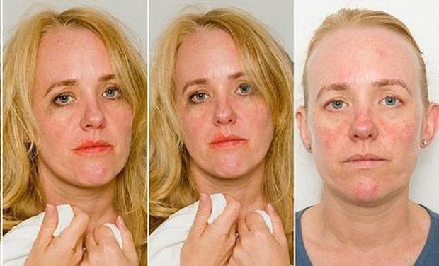 Bác sĩ chỉ ra 6 thói quen chị em nào cũng mắc phải, khiến nhan sắc tàn phai và làn da già cả chục tuổi - Ảnh 3.