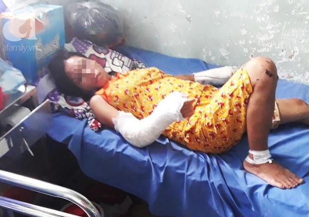Nghi án vợ đang mang thai 7 tháng bị chồng hành hạ, đánh đập nhiều lần đến hỏng mắt, người chi chít vết thương - Ảnh 1.